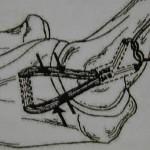 トミー・ジョン手術(側副靱帯再建手術)とは? 骨に穴を開けて靭帯を通す、驚きの内容