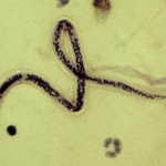 寄生虫フィラリア-オンコセルカ症や象皮病を引き起こす人を狙った寄生虫の生態とは?